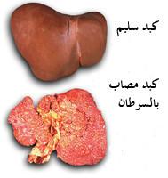 موسوعة كاملة عن سرطان الكبد وطرق العلاج